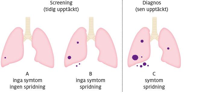 4_lungcancer_600px